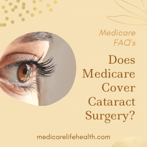 does medicare cover cataract surgery